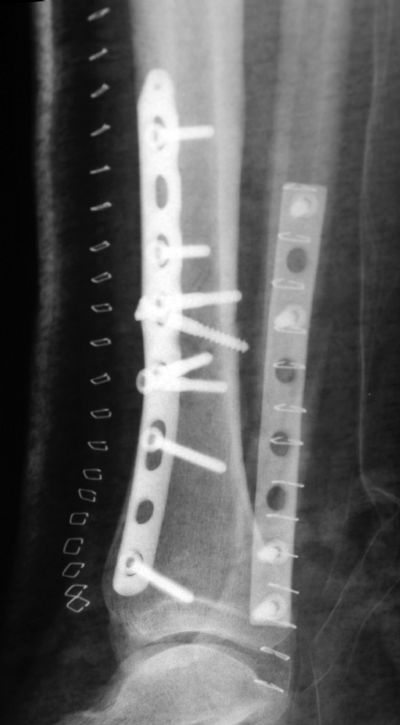 Tibia, Shaft:  Synthes Distal Tibial Plate (Implant 275)