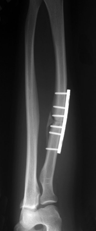Radius & Ulna, Shaft:  Synthes DCP (Implant 263)