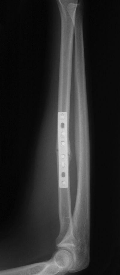 Radius & Ulna, Shaft:  Synthes DCP (Implant 264)