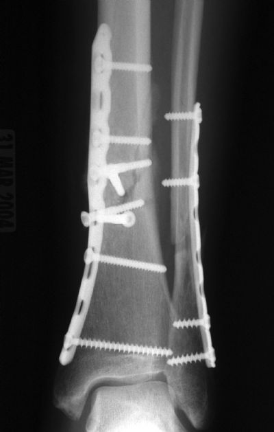 Tibia, Shaft:  Synthes Distal Tibial Plate (Implant 274)