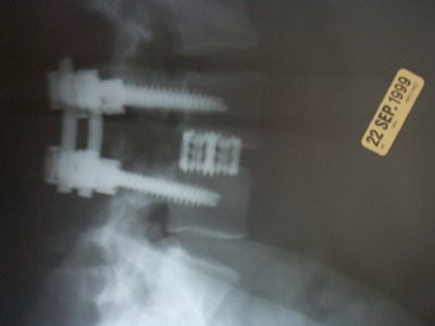 Spine-Tech BAK Cage (Implant 46)