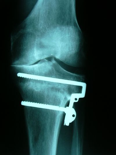 Tibia, Proximal:  Howmedica FirstStep (Implant 73)