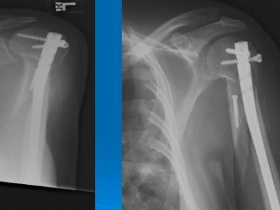 Humerus, Shaft:  Acumed Polaris Plus Nail (Implant 82)
