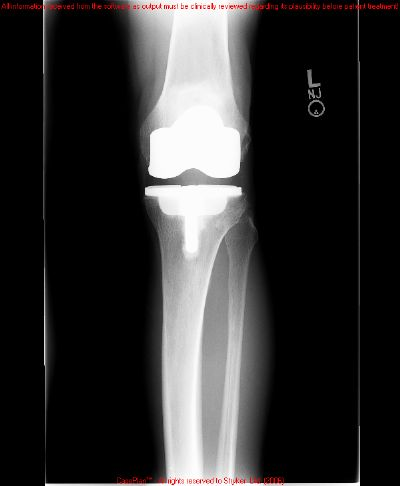 Knee Prostheses:  Total, Primary:  Zimmer Nexgen (Implant 2699)