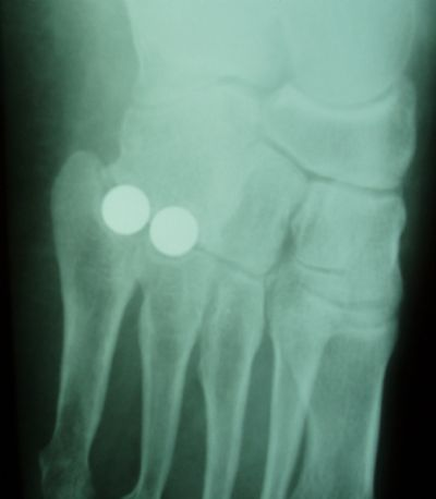 Orthosphere Tarso-Metatarsal Implants (Implant 389)