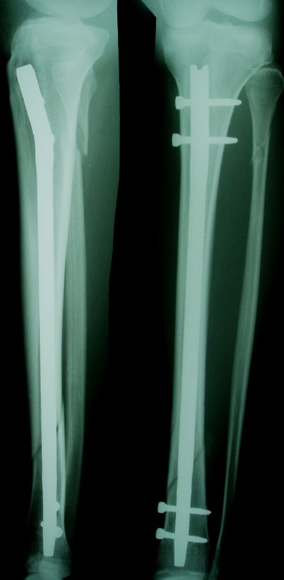 Tibia, Shaft:  Zimmer ZMS (Implant 61)