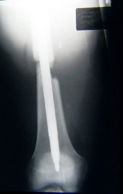 Femur, Shaft, Schneider Rod (Implant 270)