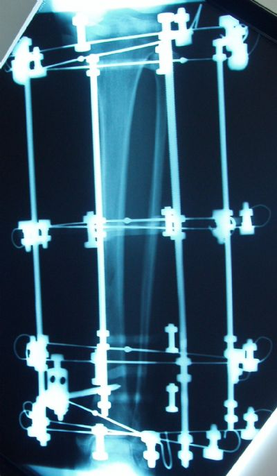Tibia, Shaft:  Smith & Nephew Ilizarov (Implant 190)