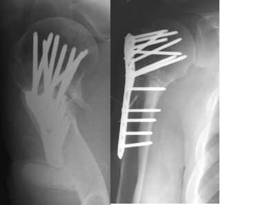 Humerus, Proximal:  Synthes Locking Humerus Plate (Implant 18)