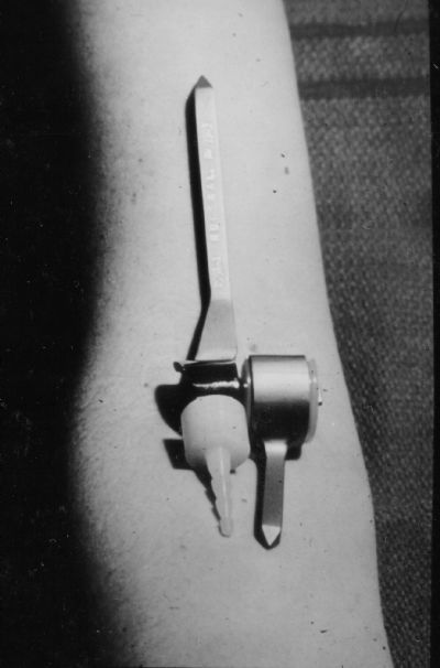 Upper Extremity Prostheses (by Coonrad for AAOS, 1982)