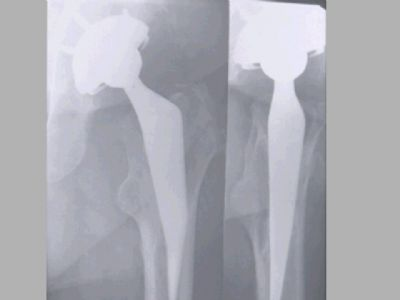 Hip Prostheses:  Total, Primary, Zimmer Mayo (Implant 152)