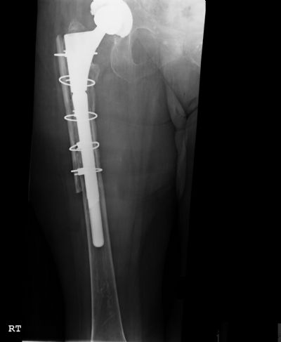 Hip Prostheses:  Total, Revision, Biomet Reach (Implant 427)