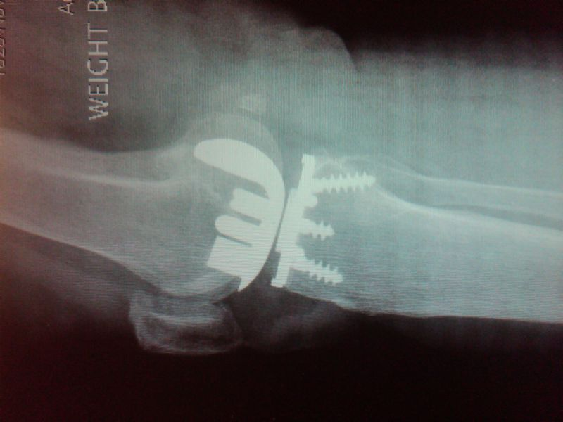 Knee Prosthesis, Total:  Unidentified (Implant 4214)